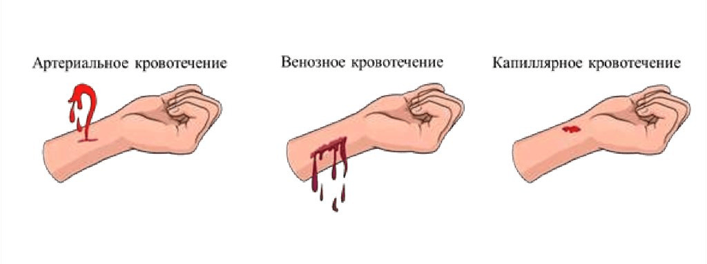 Виды кровотечений картинка