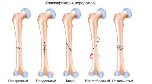 Виды переломов кости по характеру разлома