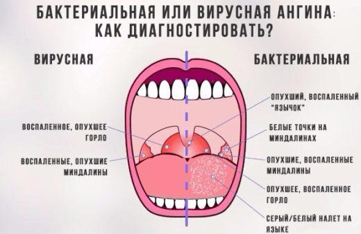 сравнение вирусной и бактериальной форм ангины