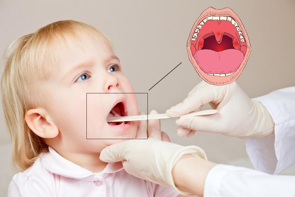 Чем лечить горло 7 месячному ребенку, лечим горло