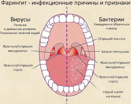 Вирусный и бактериальный фарингит