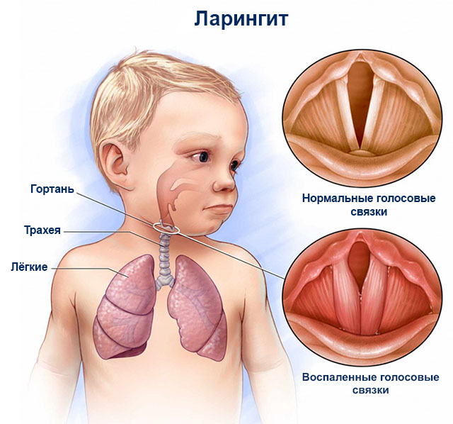 Лечение ребенка до года при ларингите в домашних условиях