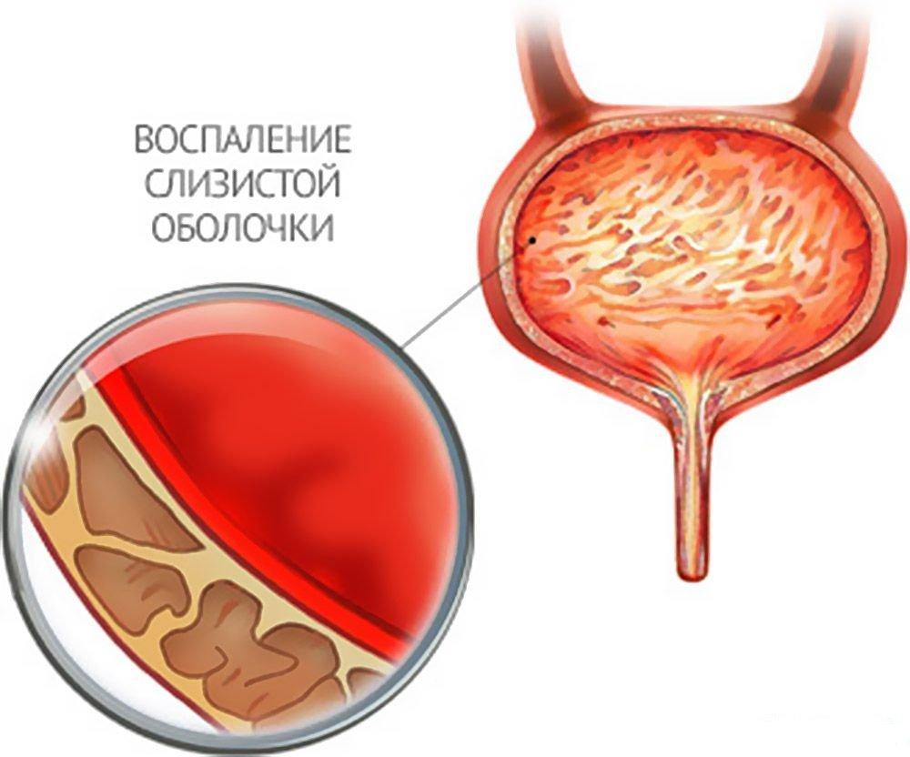 цистит - воспаление мочевого пузыря