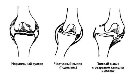 Вывих и подвывих коленного сустава