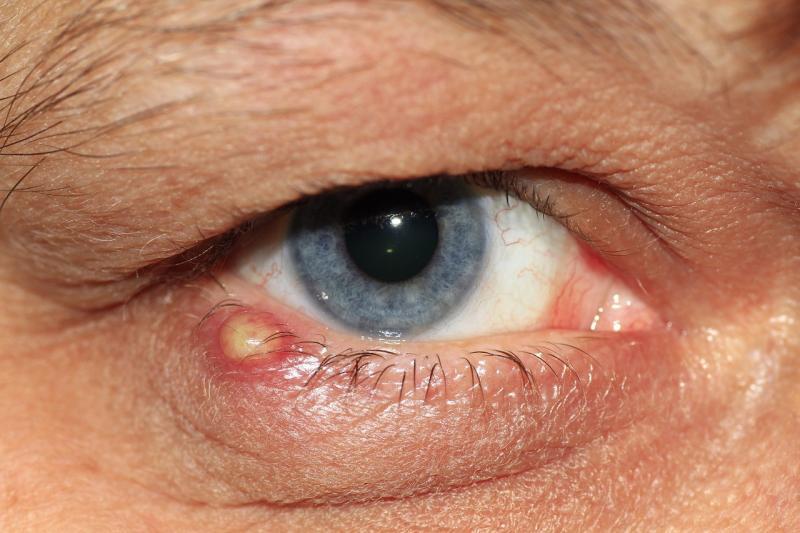 Ячмень на глазу: причины появления и эффективные меры профилактики