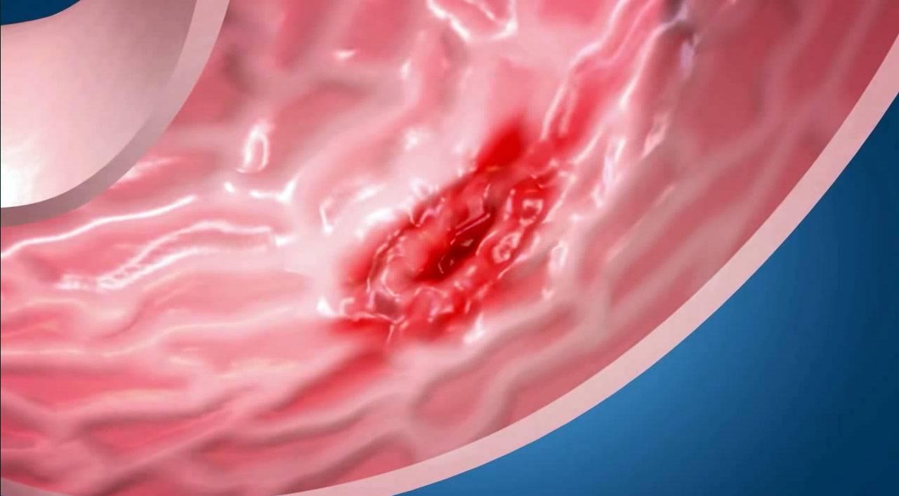 Язва двенадцатипёрстной кишки — как организм сигнализирует о недуге
