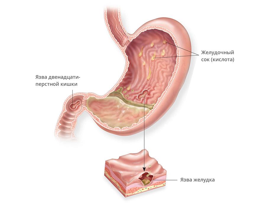 повышенное содержание холестерина у беременных