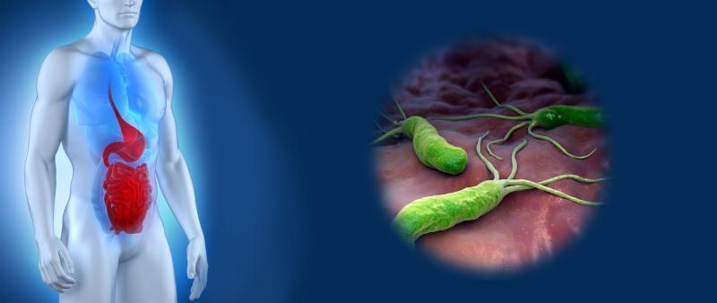 Язва двенадцатиперстной кишки: безопасные методы лечения