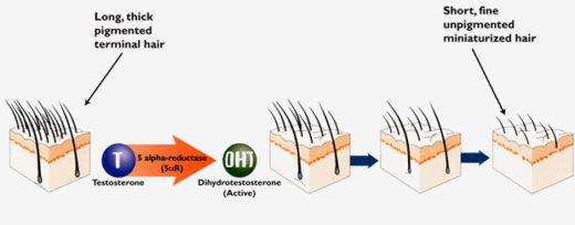 Действие дигидротестостерона на волосы