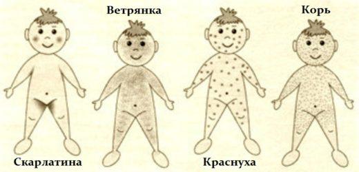 Заболевания с сыпью