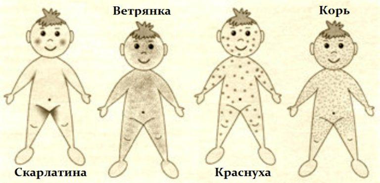 vliyaet-li-legkaya-prostuda-na-virabotku-spermi