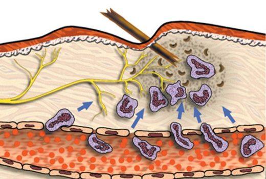 Занесение инфекции под кожу занозой