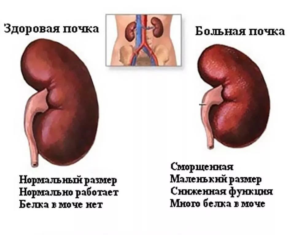 Опухоль на почке диета