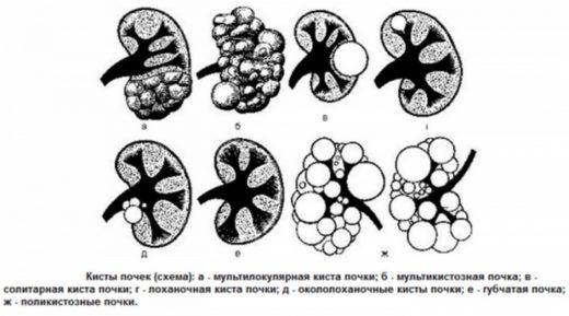 Разновидности почечных кист