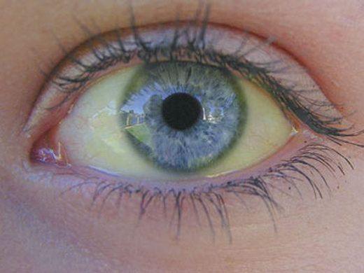 Жёлтый белок глаза