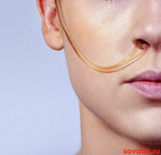 желудочный зонд через нос у женщины