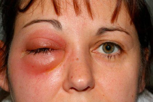 Женщина с абсцессом глазницы