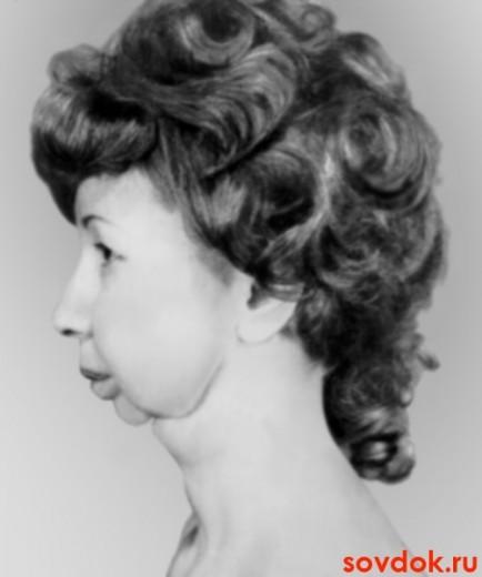 женщина с МЭН-синдромом