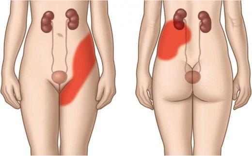 женское туловище, система мочевыделения и обозначение локализации боли