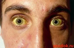Хронический гепатит б полное излечение