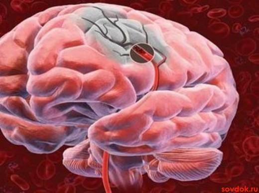 зона ишемии мозга