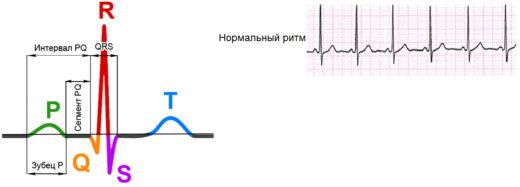 Комплекс PQRST и лента ЭКГ