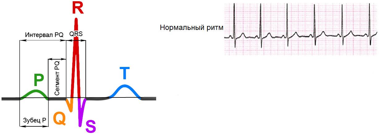 ритмы сердечного сокращения картинки